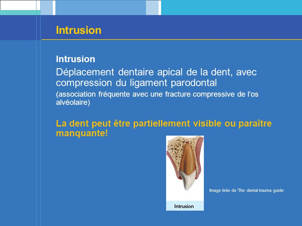 Intrusion Intrusion. Déplacement dentaire apical de la dent, avec compression du ligament parodontal.