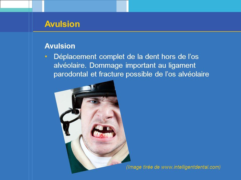 Avulsion Avulsion.