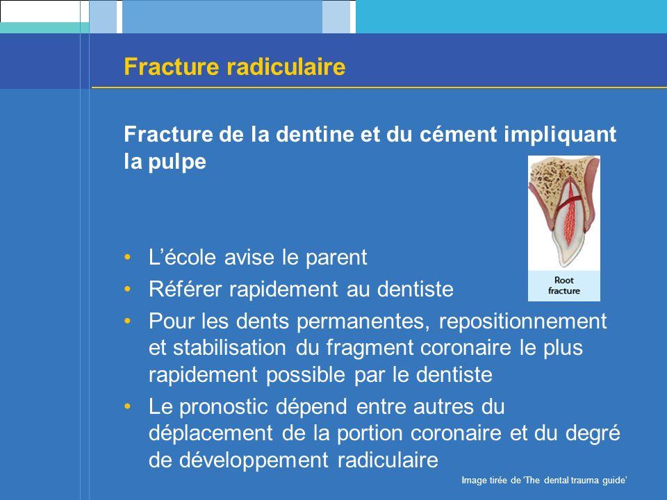 Fracture radiculaire Fracture de la dentine et du cément impliquant la pulpe. L'école avise le parent.