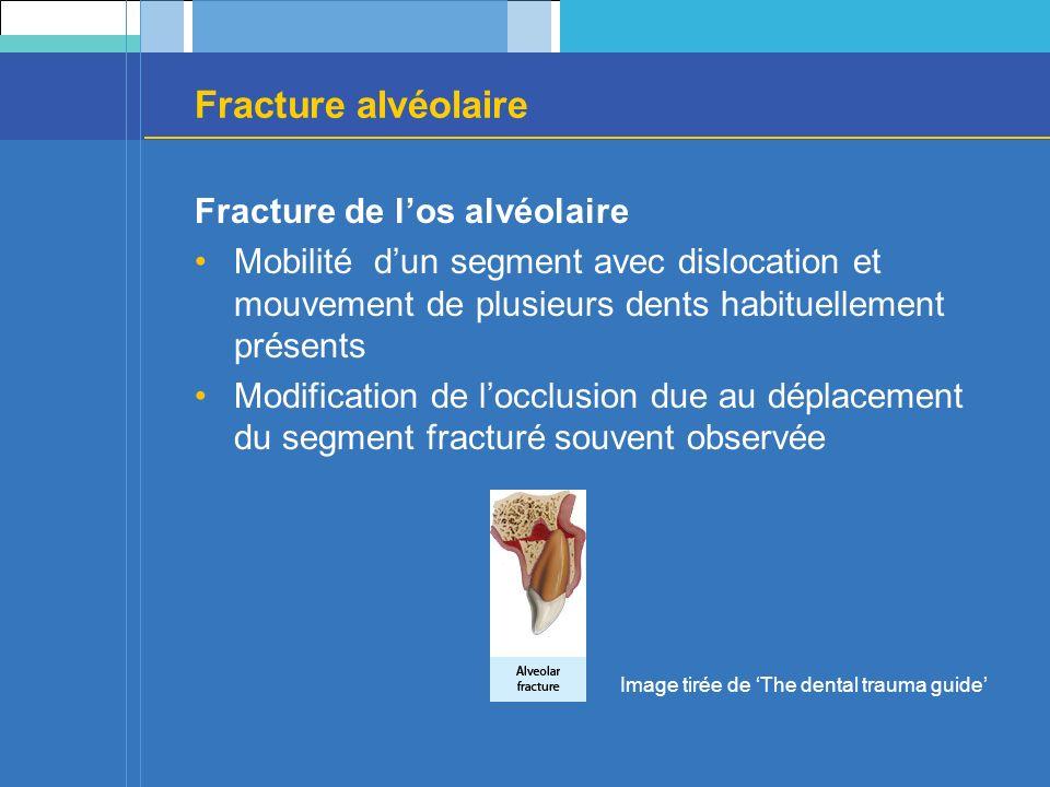 Fracture alvéolaire Fracture de l'os alvéolaire