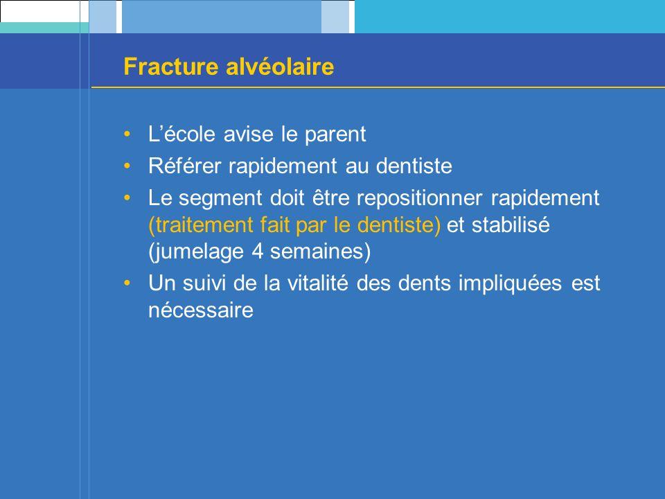 Fracture alvéolaire L'école avise le parent