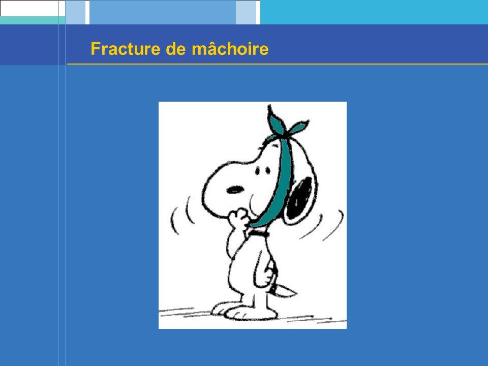 Fracture de mâchoire