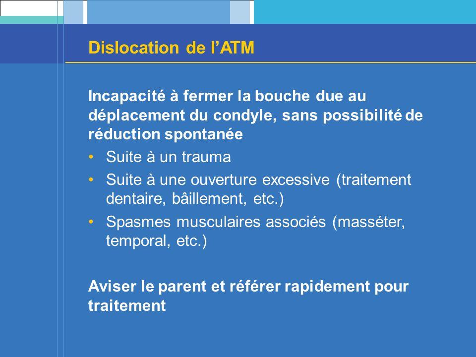 Dislocation de l'ATM Incapacité à fermer la bouche due au déplacement du condyle, sans possibilité de réduction spontanée.
