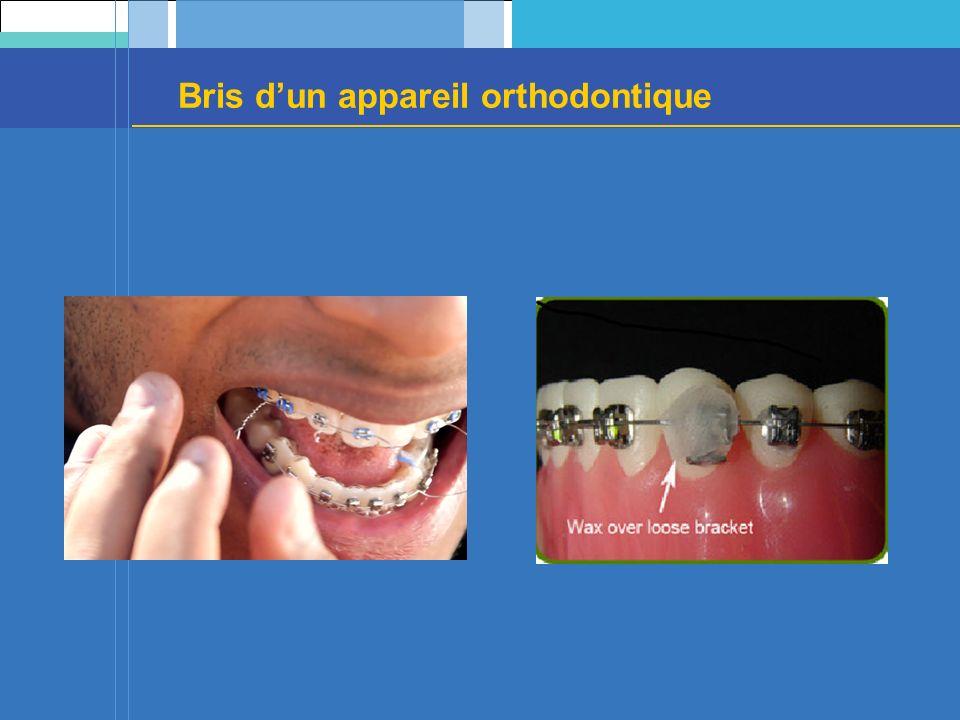 Bris d'un appareil orthodontique