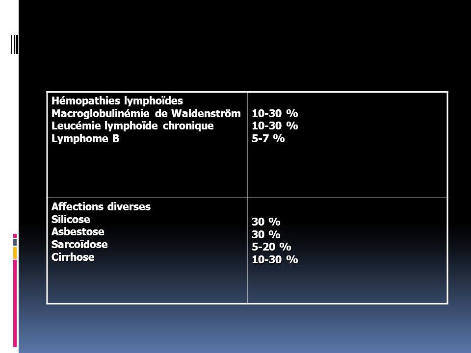 Hémopathies lymphoïdes Macroglobulinémie de Waldenström Leucémie lymphoïde chronique Lymphome B