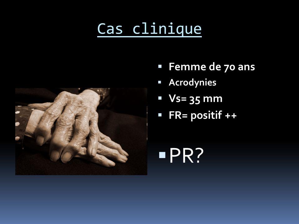 Cas clinique Femme de 70 ans Acrodynies Vs= 35 mm FR= positif ++ PR