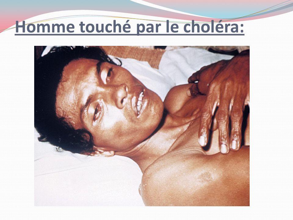 Homme touché par le choléra: