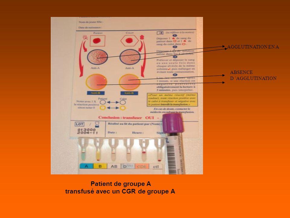 Patient de groupe A transfusé avec un CGR de groupe A