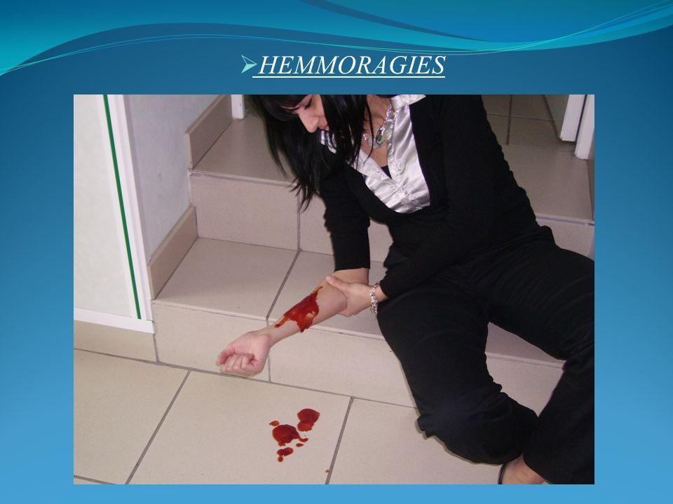 HEMMORAGIES