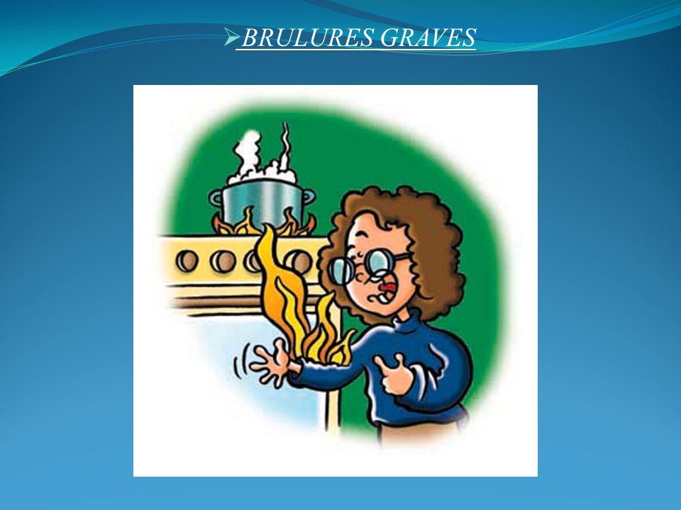 BRULURES GRAVES