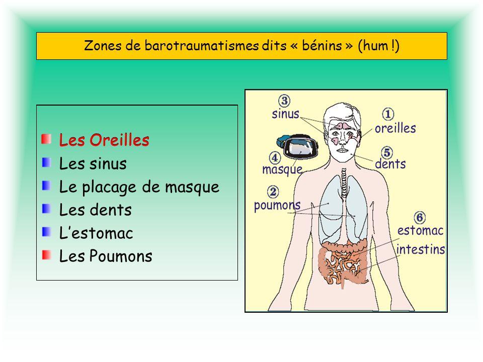 Zones de barotraumatismes dits « bénins » (hum !)
