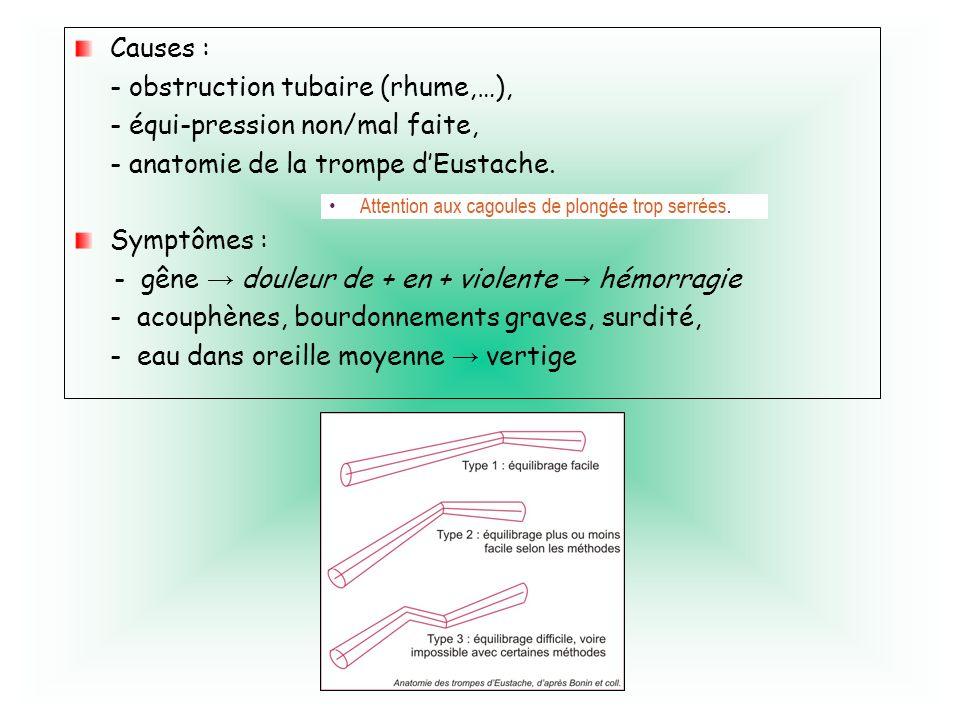 Causes : - obstruction tubaire (rhume,…), - équi-pression non/mal faite, - anatomie de la trompe d'Eustache.