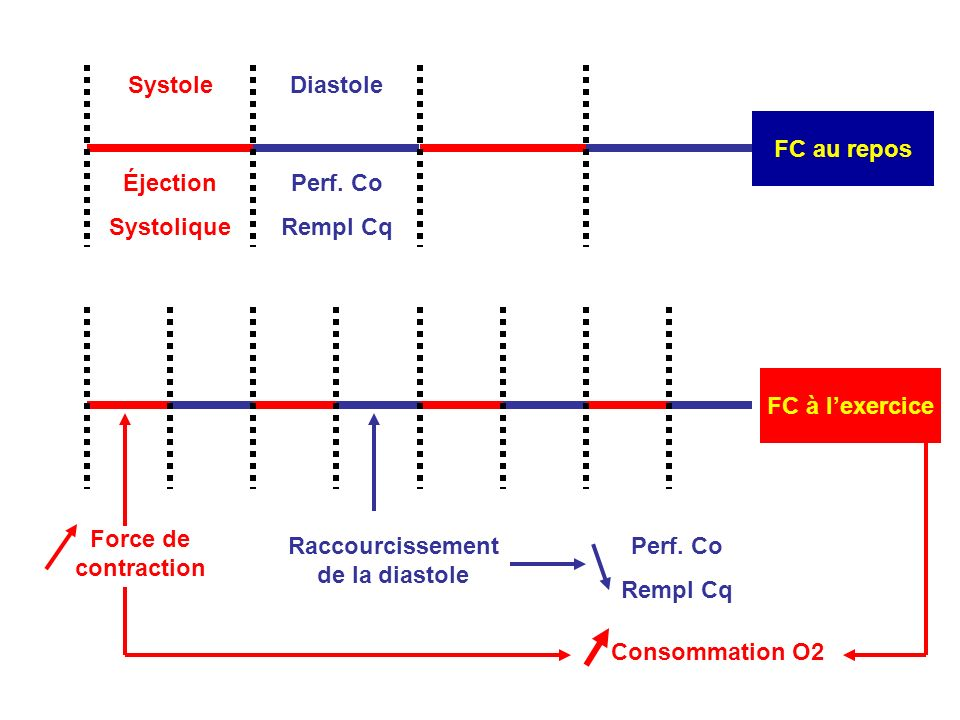 Raccourcissement de la diastole