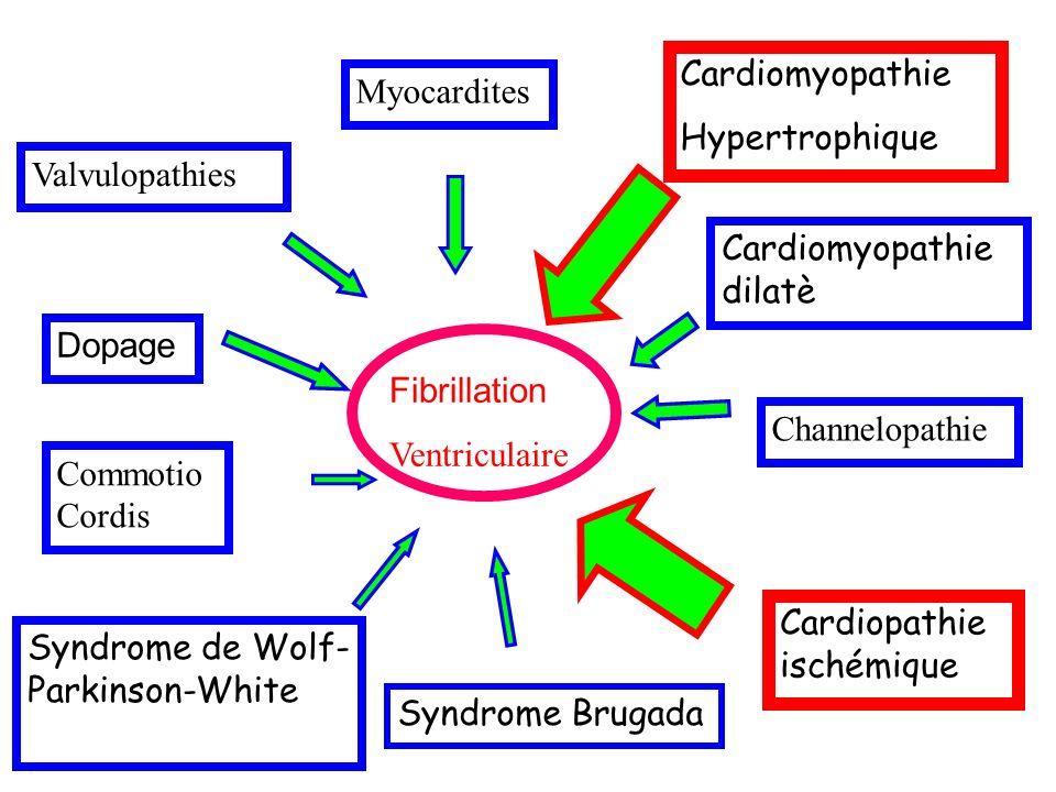 Cardiomyopathie Hypertrophique. Myocardites. Valvulopathies. Cardiomyopathie dilatè. Dopage. Fibrillation.
