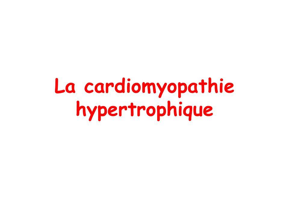 La cardiomyopathie hypertrophique