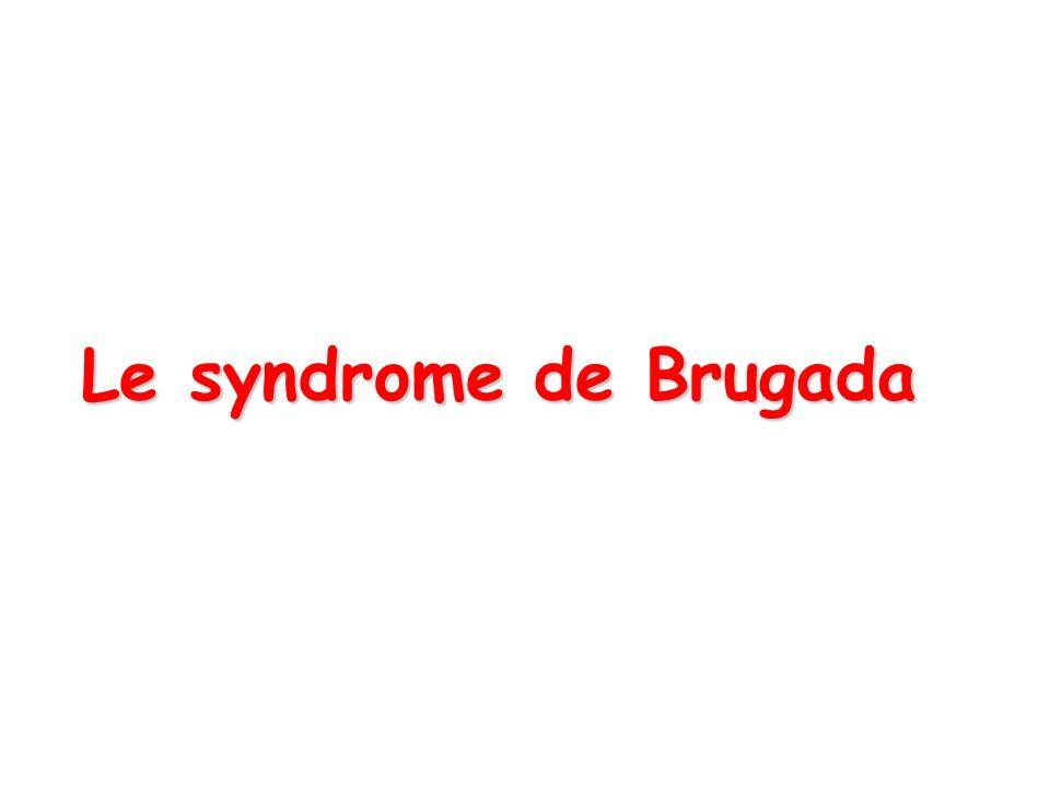 Le syndrome de Brugada