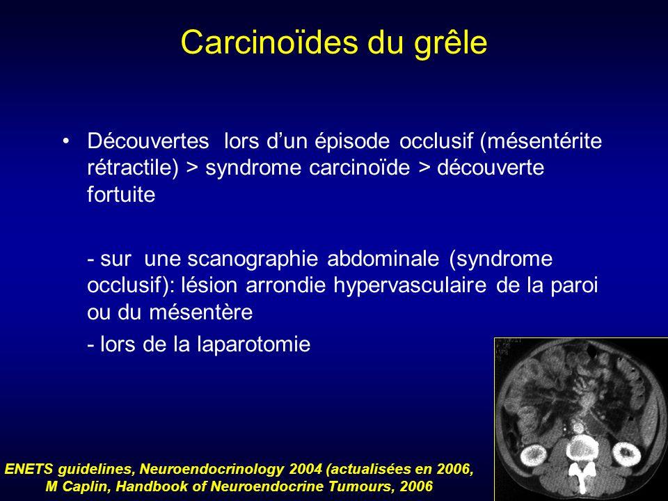Carcinoïdes du grêle Découvertes lors d'un épisode occlusif (mésentérite rétractile) > syndrome carcinoïde > découverte fortuite.