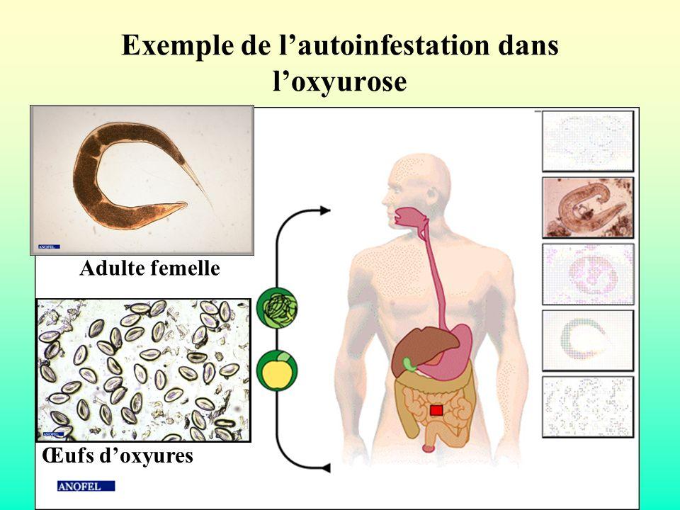 Exemple de l'autoinfestation dans l'oxyurose