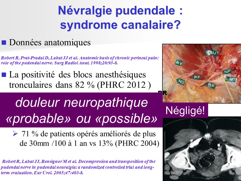 Névralgie pudendale : syndrome canalaire