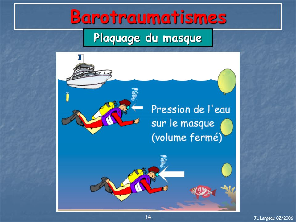 Barotraumatismes Plaquage du masque JL Largeau 02/2006