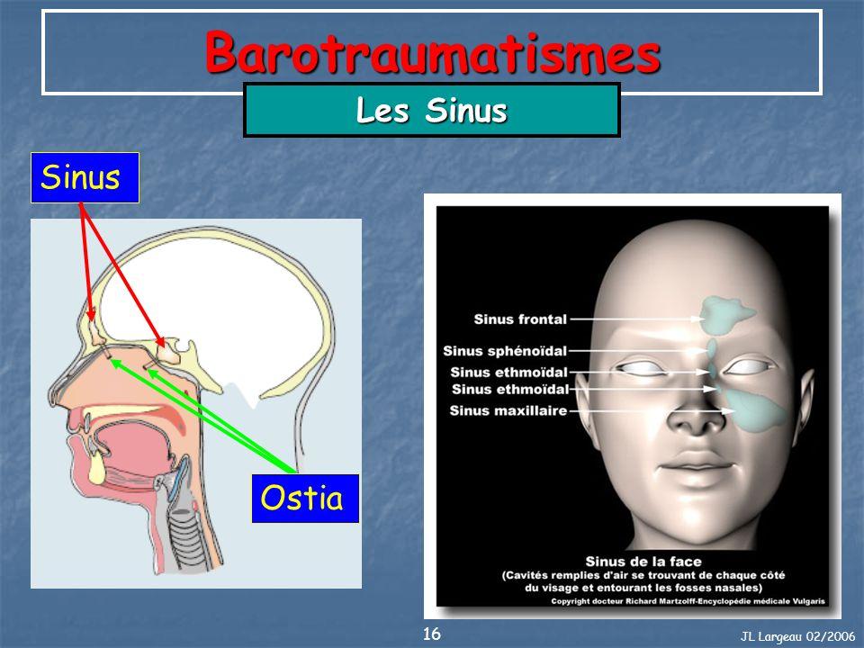 Barotraumatismes Les Sinus Sinus Ostia JL Largeau 02/2006