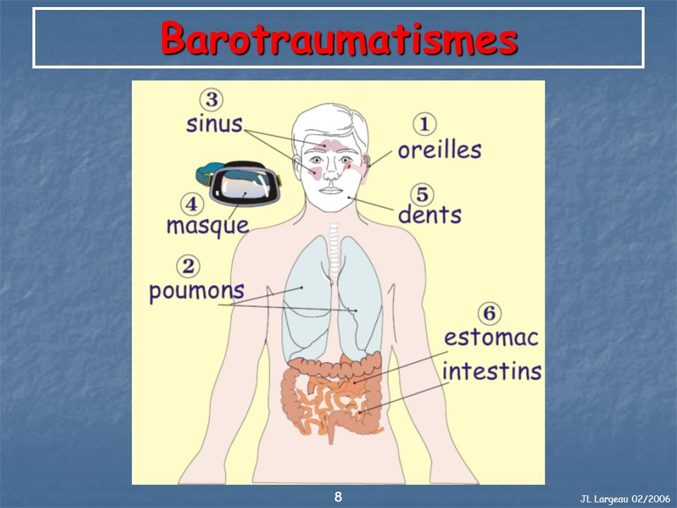 Barotraumatismes JL Largeau 02/2006