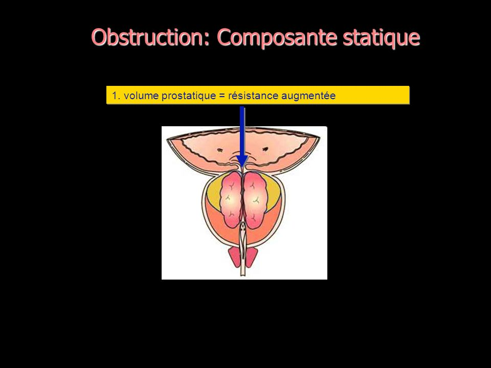 Obstruction: Composante statique