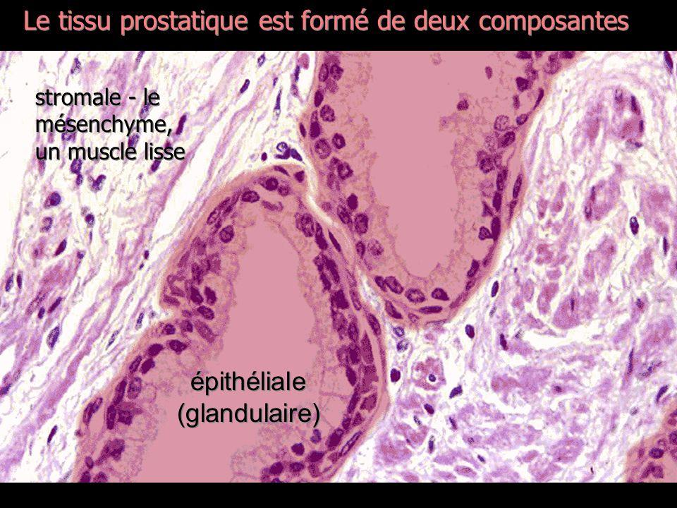 épithéliale (glandulaire)