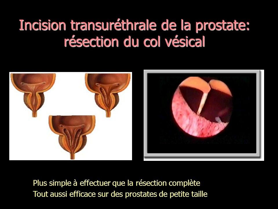 Incision transuréthrale de la prostate: résection du col vésical