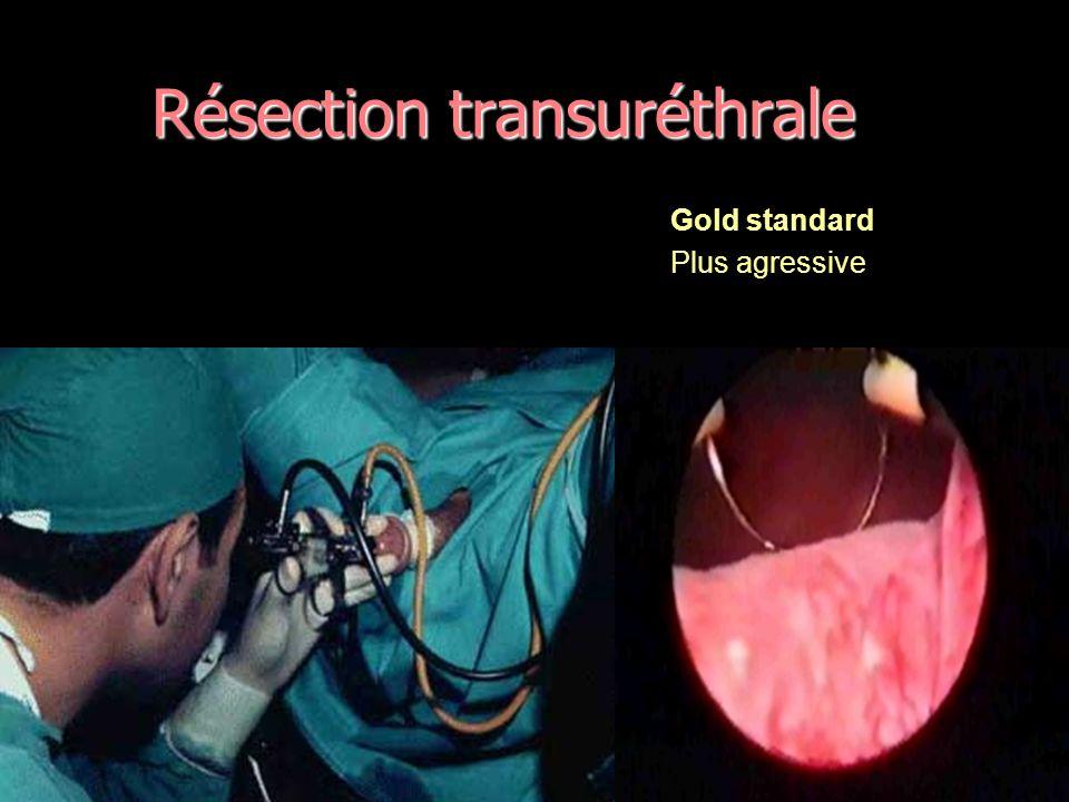 Résection transuréthrale