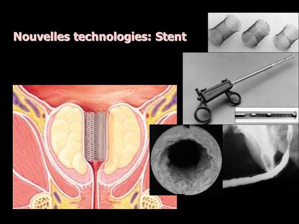 Nouvelles technologies: Stent