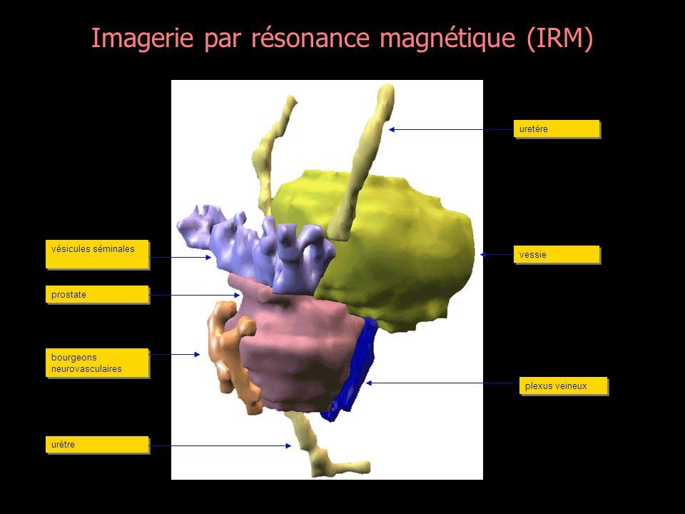 Imagerie par résonance magnétique (IRM)