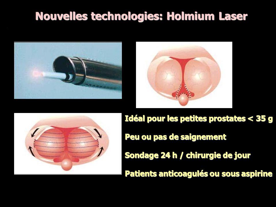 Nouvelles technologies: Holmium Laser