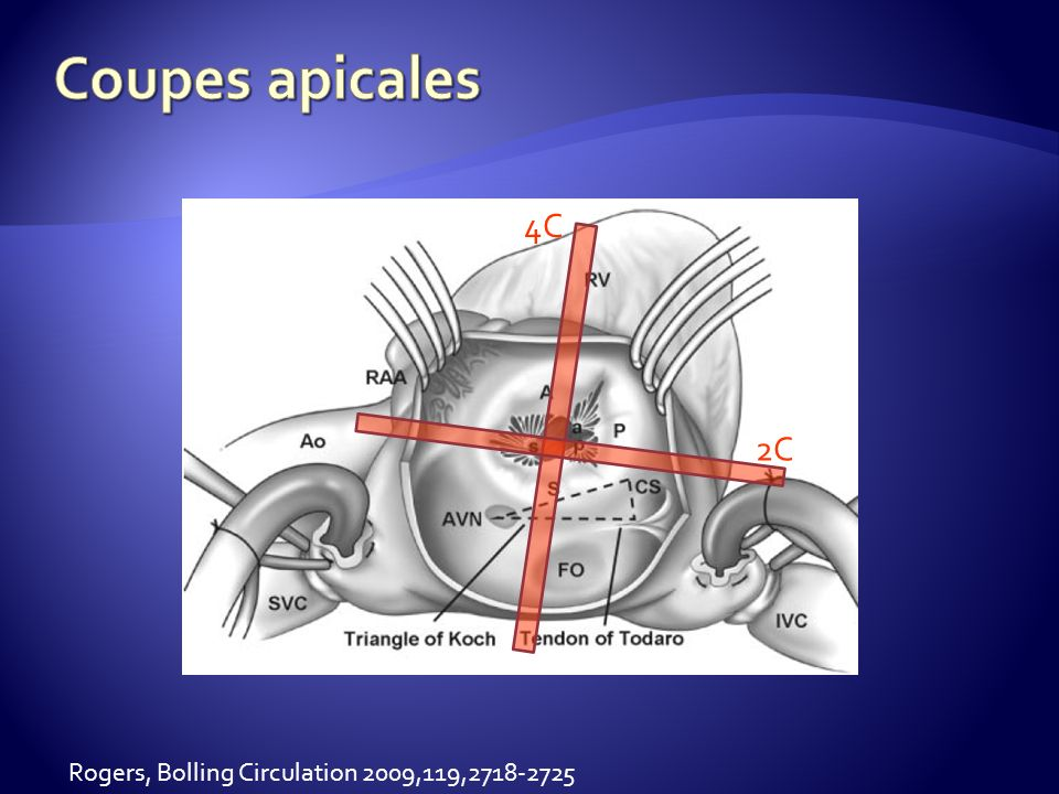 Coupes apicales 4C 2C Rogers, Bolling Circulation 2009,119,2718-2725