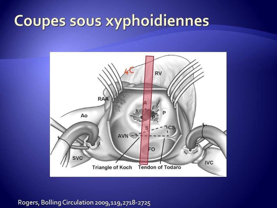 Coupes sous xyphoidiennes