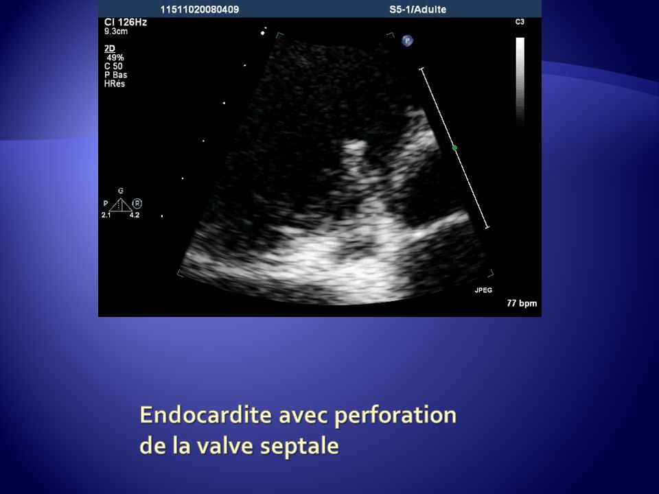 Endocardite avec perforation de la valve septale