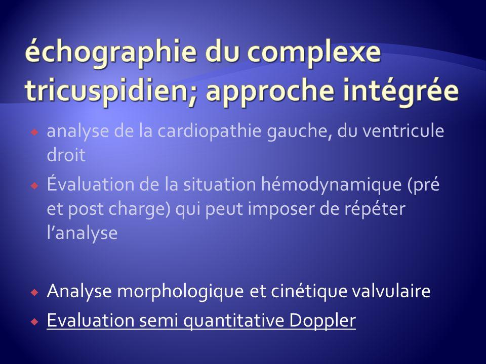 échographie du complexe tricuspidien; approche intégrée