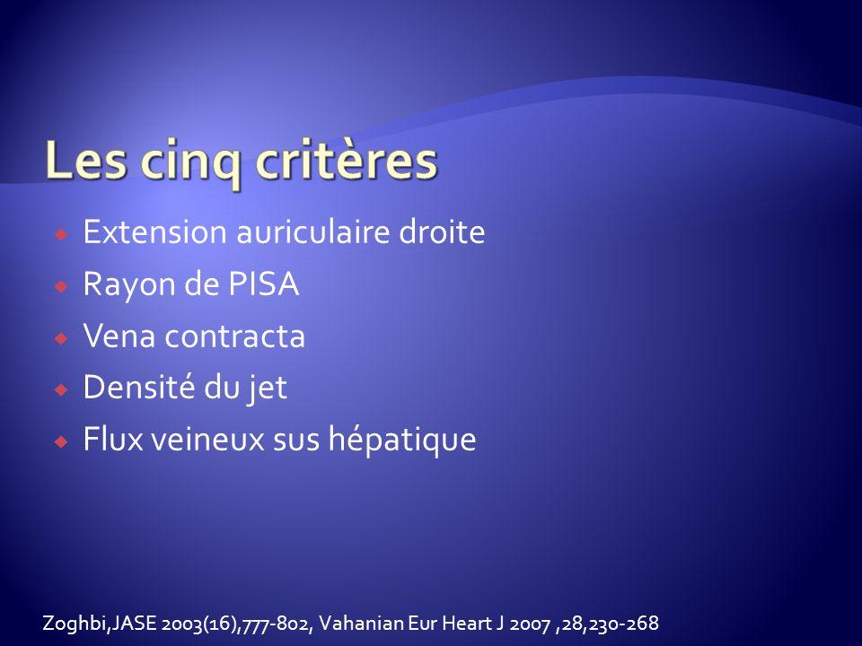 Les cinq critères Extension auriculaire droite Rayon de PISA