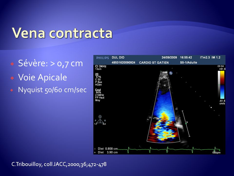 Vena contracta Sévère: > 0,7 cm Voie Apicale Nyquist 50/60 cm/sec