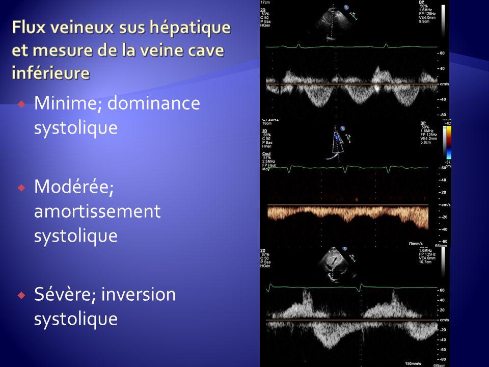 Flux veineux sus hépatique et mesure de la veine cave inférieure