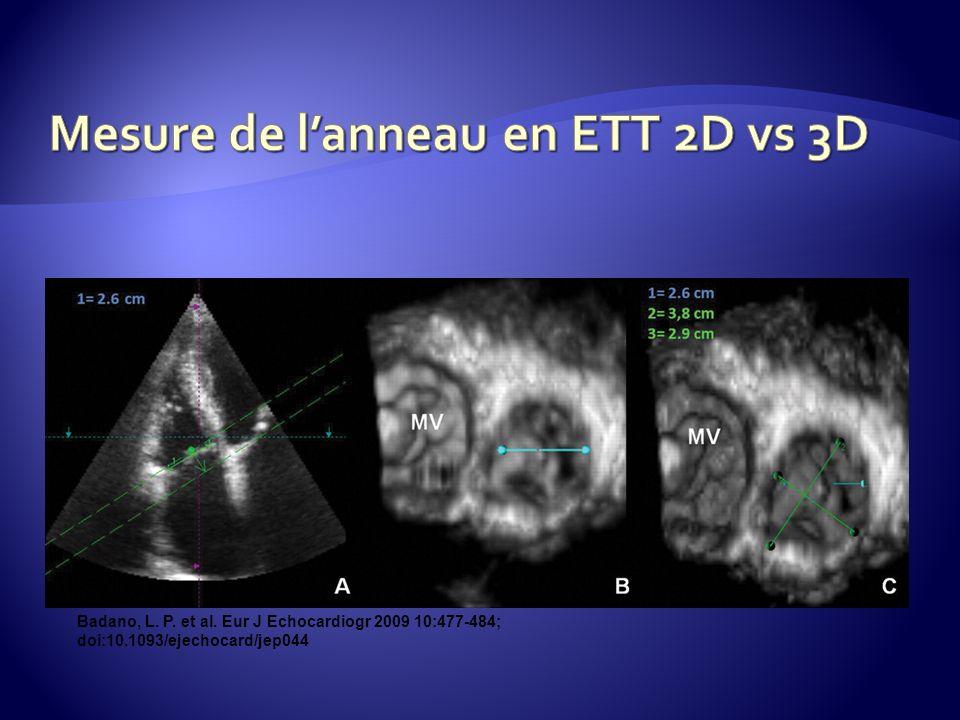 Mesure de l'anneau en ETT 2D vs 3D