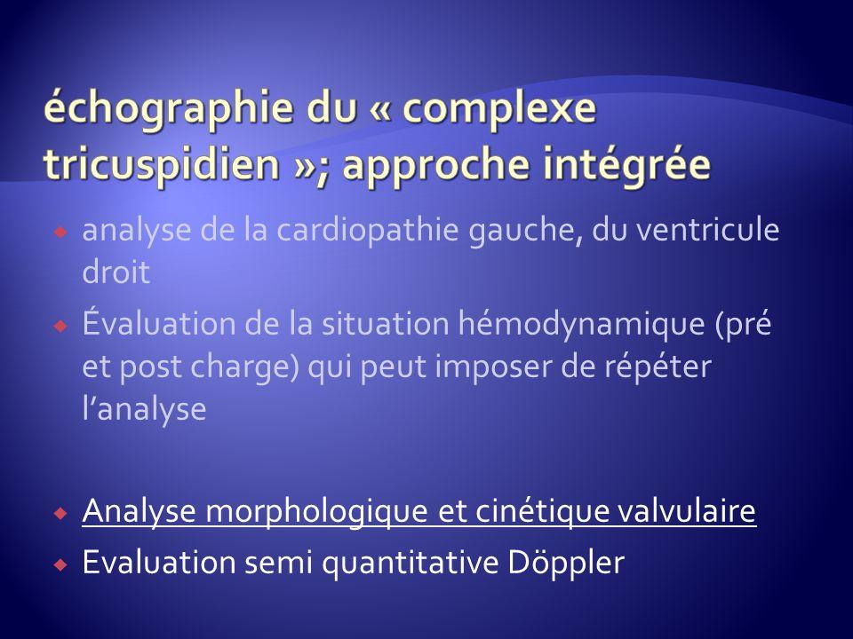 échographie du « complexe tricuspidien »; approche intégrée