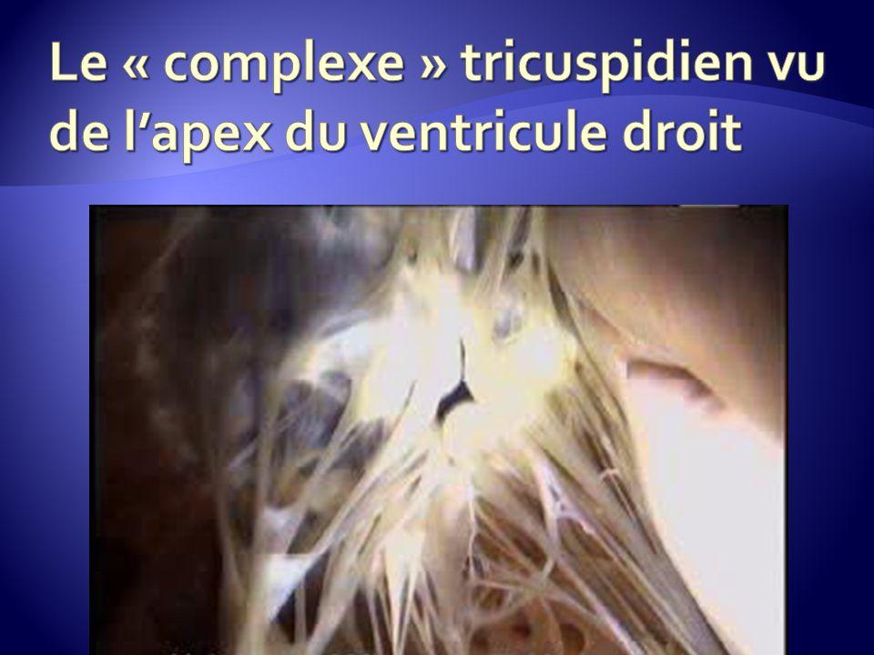 Le « complexe » tricuspidien vu de l'apex du ventricule droit