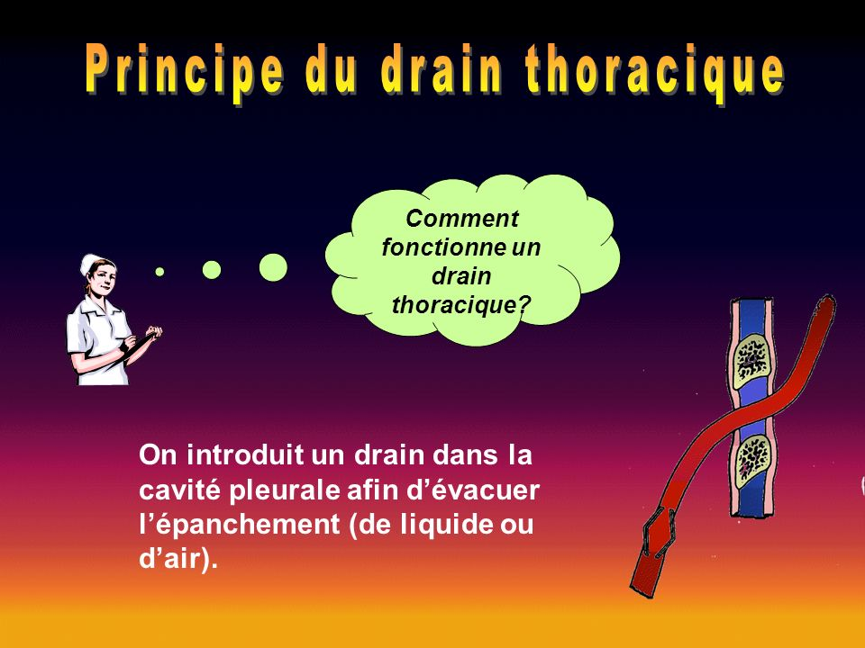 Comment fonctionne un drain thoracique