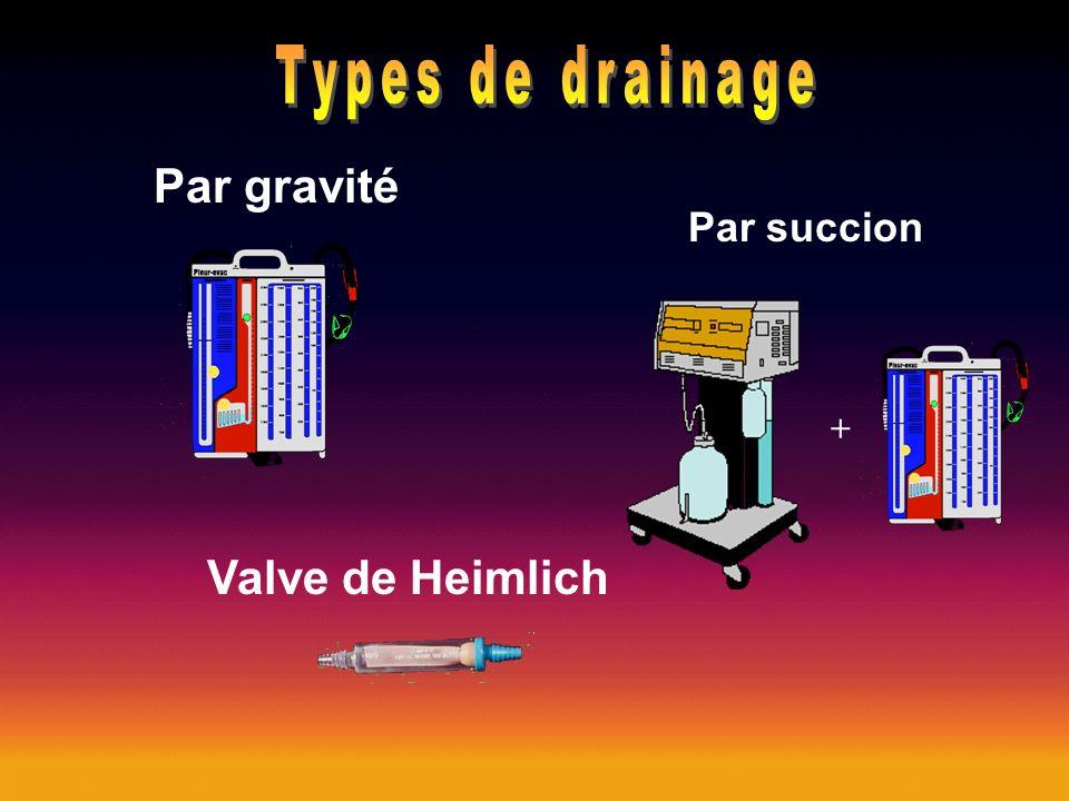 Types de drainage Par gravité Valve de Heimlich Par succion +