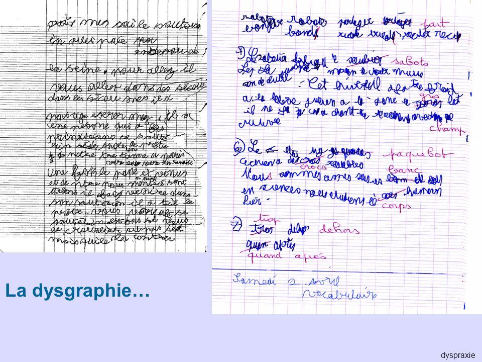 La dysgraphie… dyspraxie