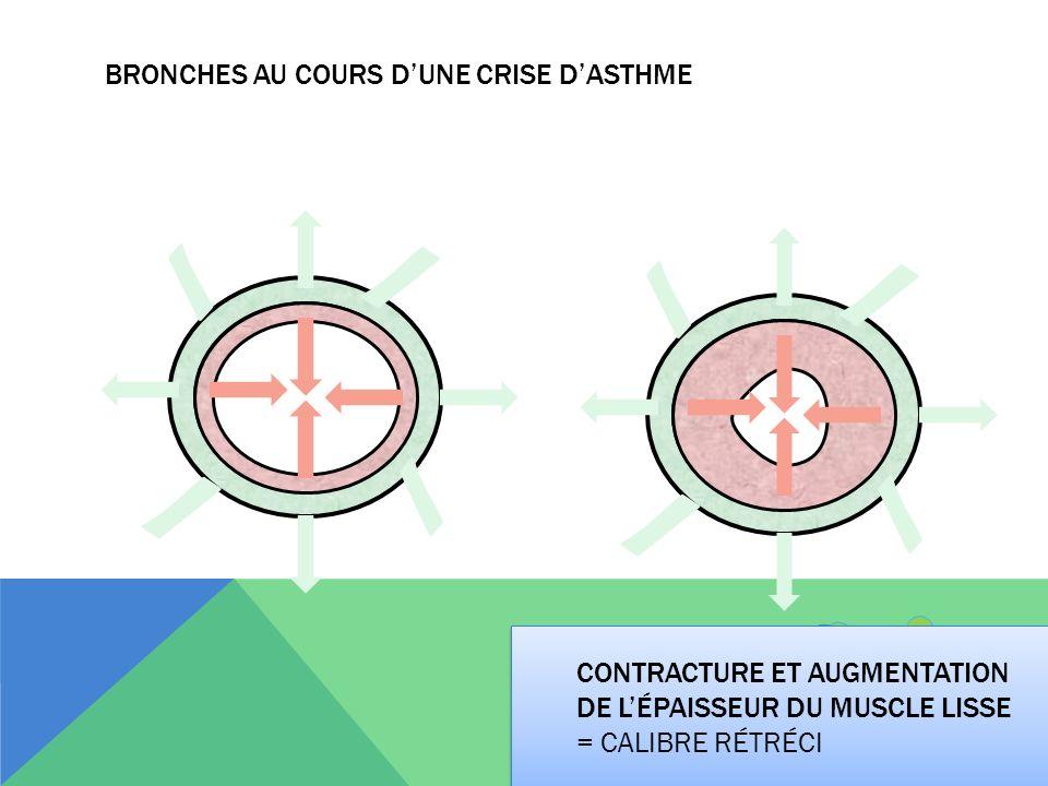 Bronches au cours d'une crise d'asthme
