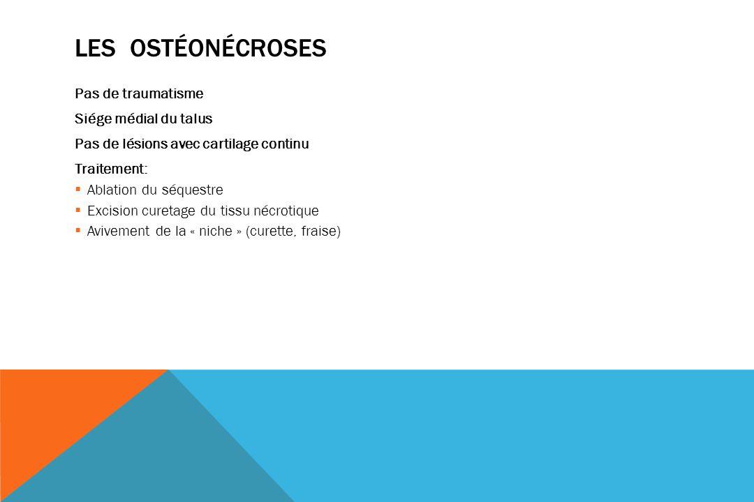 Les ostéonécroses Pas de traumatisme Siége médial du talus