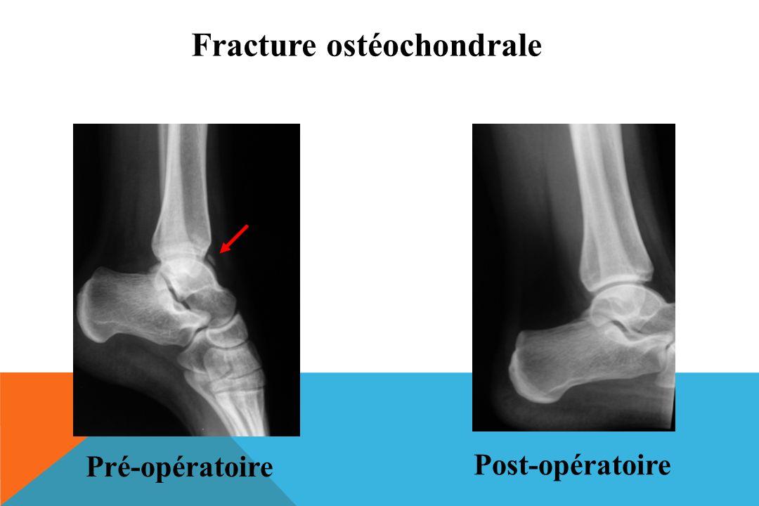 Fracture ostéochondrale