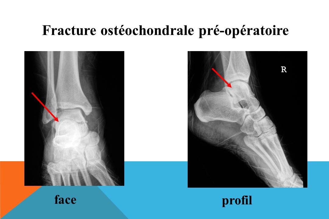 Fracture ostéochondrale pré-opératoire
